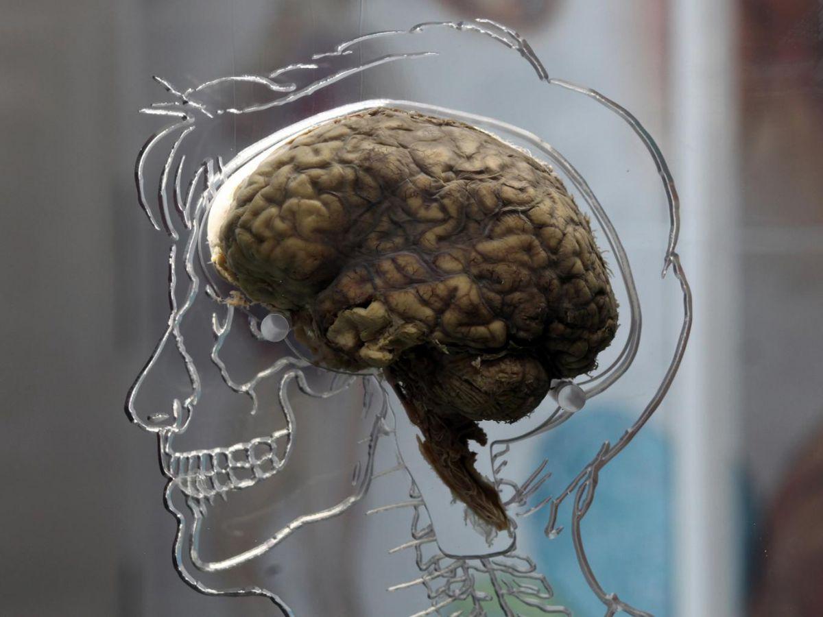 «Синдром Котара»: живые мертвецы