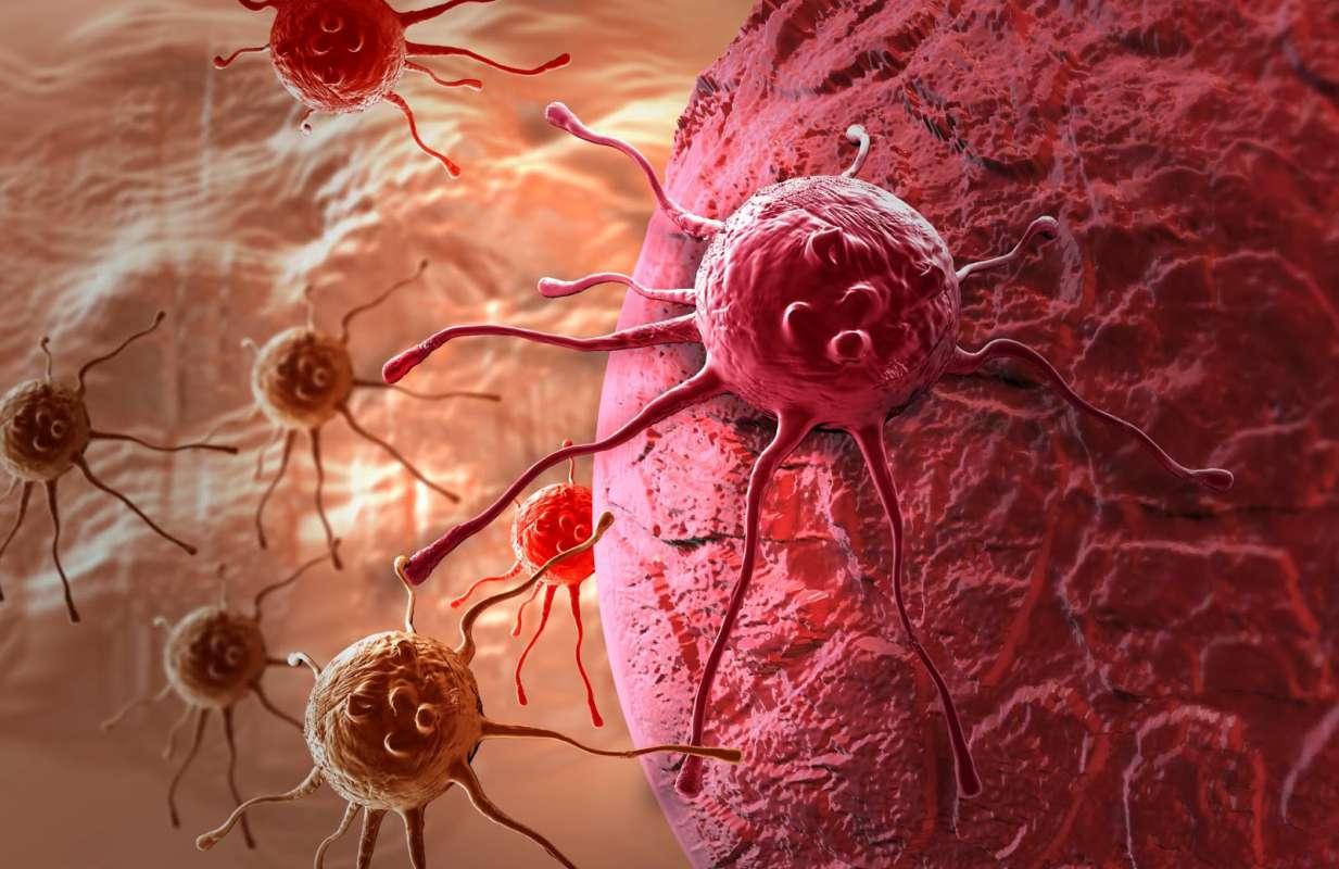 Фото онкологические заболевания вагины 4 фотография