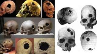 В Китае выставили на всеобщее обозрение черепа древних людей с отверстиями – следами трепанации
