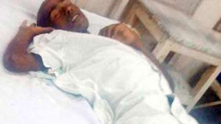 В Индии мужчина очнулся на столе патологоанатома прямо перед вскрытием