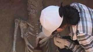Древние хирурги Сибири использовали уникальные инструменты, которых не было в Европе