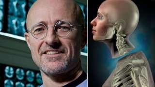 Как будет происходить первая в истории сложнейшая операция – пересадка головы