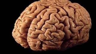 Воскресить человека теперь возможно, заморозив предварительно его мозг