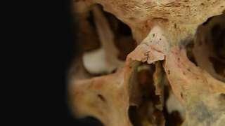 Человеческие останки с внушительным количеством переломов были найдены археологами в Ставропольском крае.
